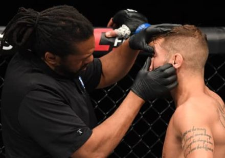 Jeremy Stephens UFC Mexico City eye poke